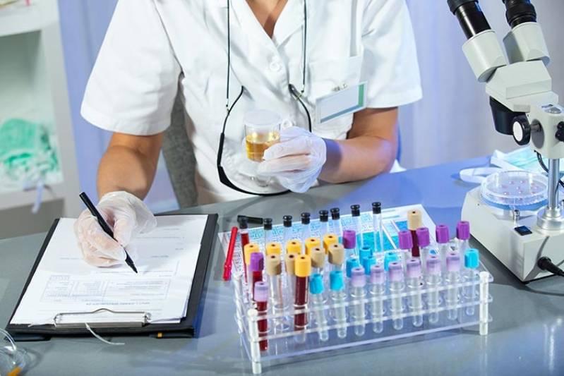 Clínica para Exame Laboratorial de Ferro Serico Santo André - Exames Laboratoriais de Testosterona