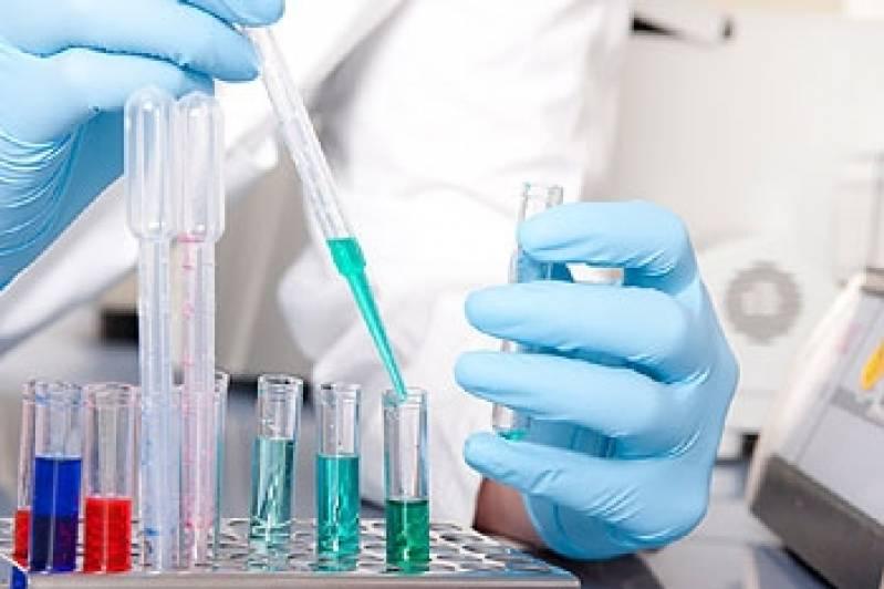 Exames Laboratoriais Hemograma Preço Jaçanã - Exames Laboratoriais de Testosterona