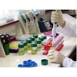 clínica de análise laboratorial para exame de creatinina